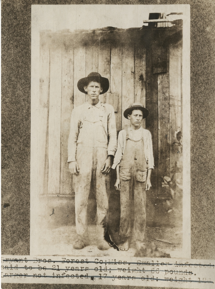 Bryant Bros. Forest Co., Miss.  Smaller infected: said to be 21 years old; weight 66 pounds. Larger not infected: 17 years old: weight 126.