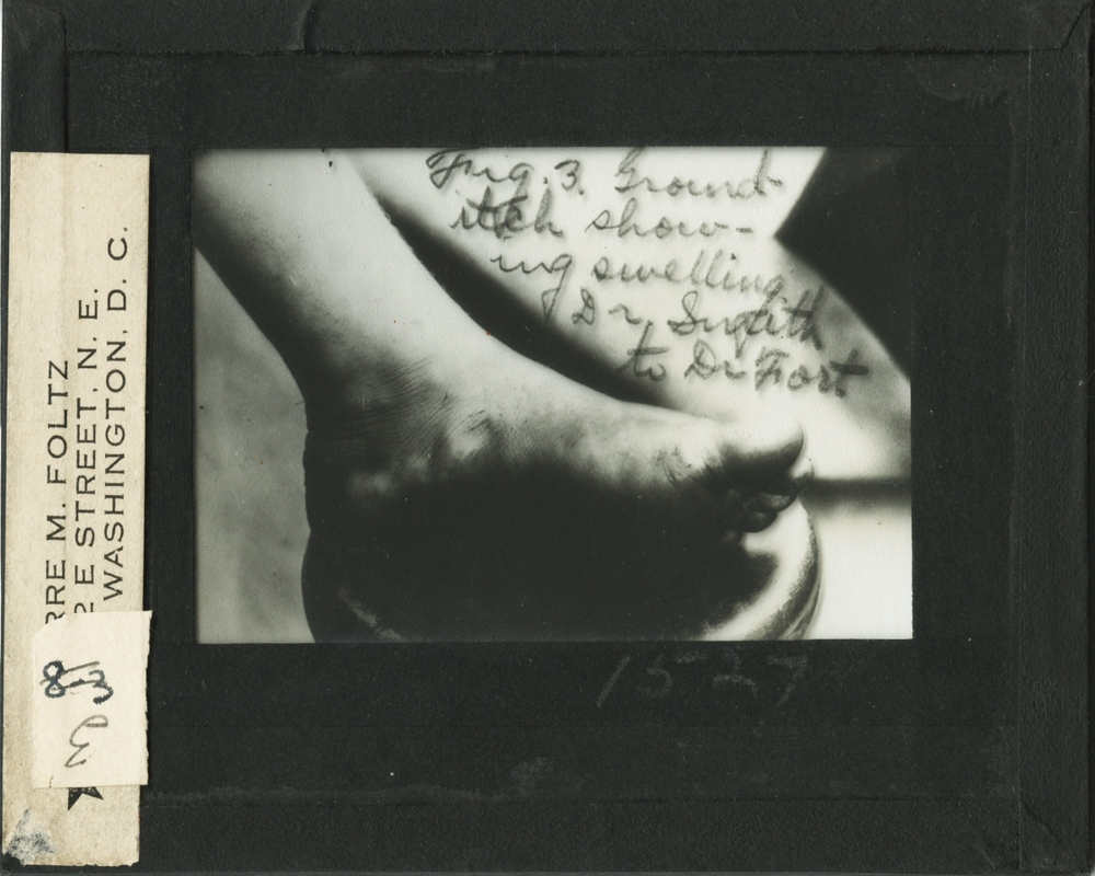 A person's foot showing evidence of ground-itch, a symptom of hookworm infection
