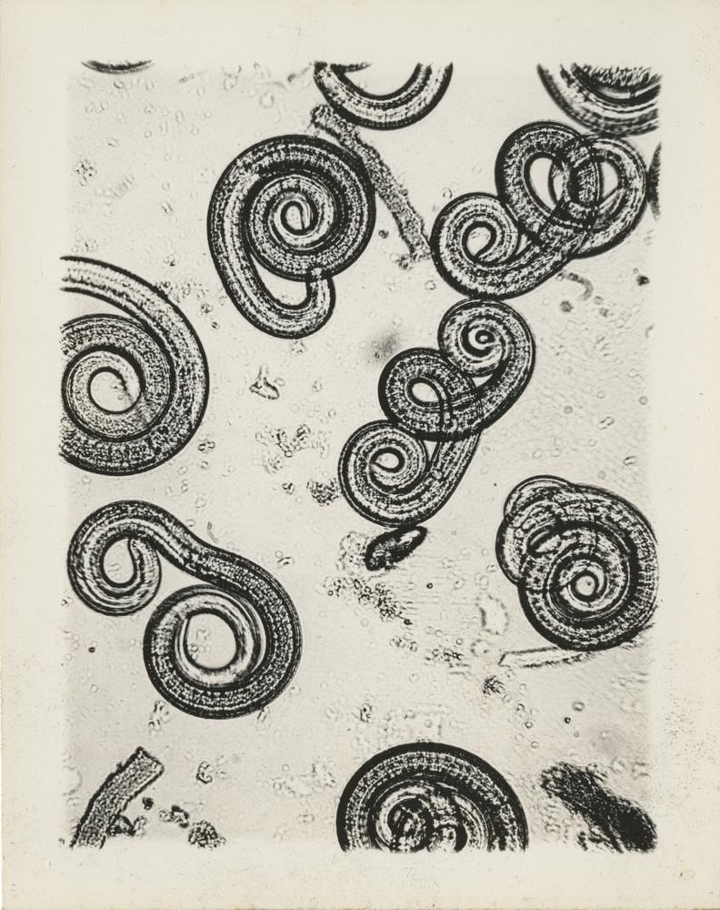 Trichinella spirales larvae microscope photographs
